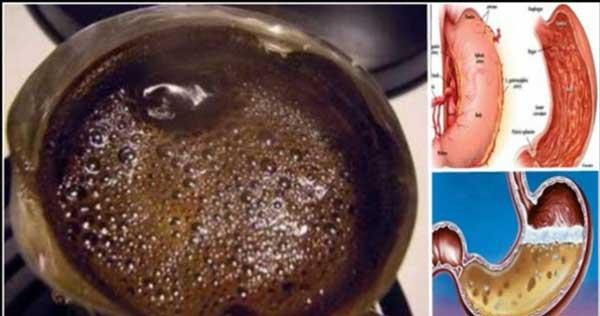 кафе-на-празен-стомах