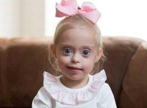 момиченце-със-синдром-на-Даун