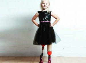 момиче-с-протези-модел