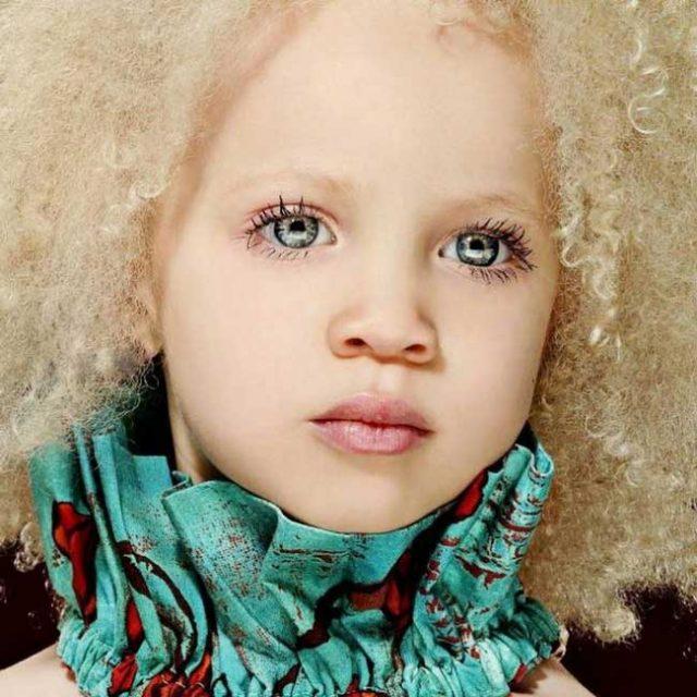 Прелестно-момиче-албинос-успяло-не-само-да-се-приспособи-към-живота,-но-и-да-стане-модел