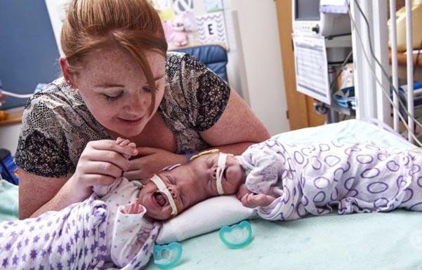 Тези-близнаци-се-родили-и-всички-ахнали---момичетата-били-със-сраснали-глави.-Ето-как-изглеждат-днес