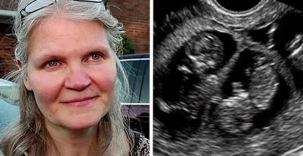 На-42-години-тя-забременяла-с-тризнаци,-но-по-време-на-раждането-се-случило-нещо-невероятно!