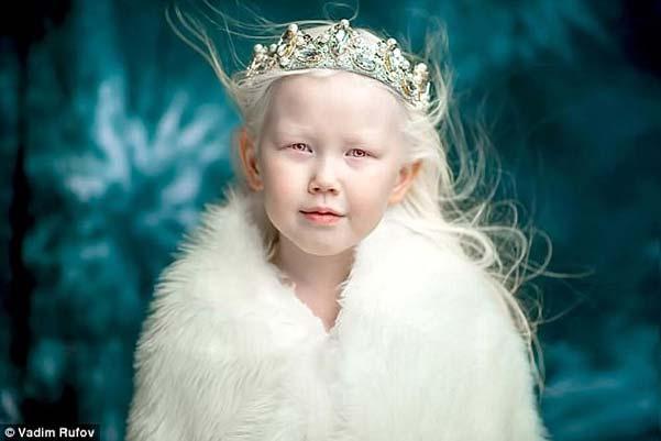 Това-момиченце-покорило-всички-с-необичайната-си-външност.-Снежната-кралица!