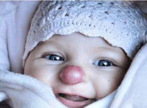 """Как изглежда след 3 години момичето с """"клоунски"""" нос"""