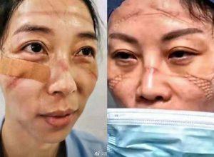 Как изглеждат лицата на китайските лекари в края на смяната