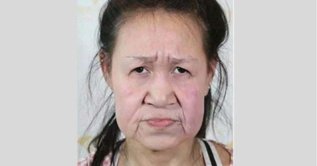 15-годишна-ученичка-с-лице-на-старица-след-пластични-операции-станала-красавица