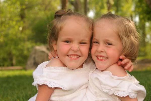 Сиамски близначки били разделени на 4-годишна възраст. Сега вече са на 18 и ето как изглеждат