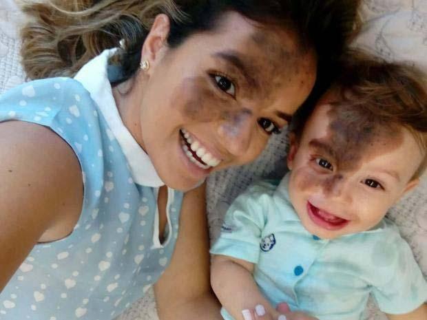 За да подкрепи сина си, майка си рисува същото родилно петно като неговото