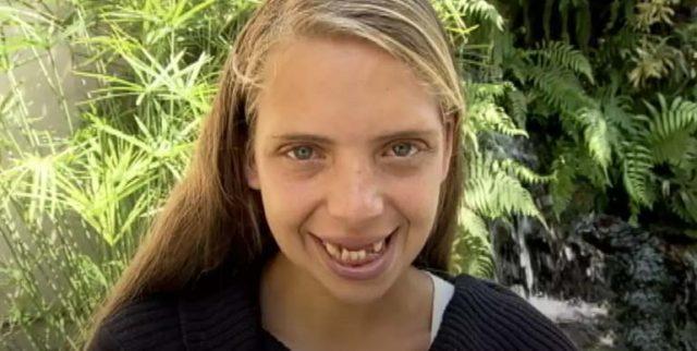 Момиче забременяло на 17 и й изпадали зъбите. След 7 години стилисти и зъболекари я променили!