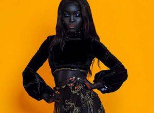 Това момиче преди се комплексирала заради кожата си. Днес тя е супер модел
