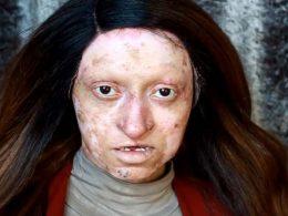 От грозно пате до лебед: гримьор преобразил момиче с проблемна кожа