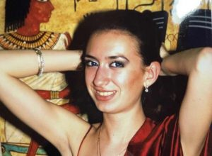 Жената с най-големи скули в света показа как е изглеждала преди
