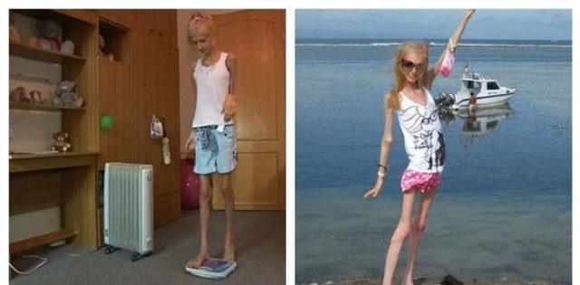 Преди-10-години-тя-тежала-само-23-кг.-Как-изглежда-днес