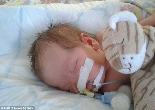 Как живее днес момичето, което преди осем години се родило без нос