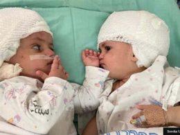 Емоционално! Сиамски близначки се виждат за пръв път, след като хирурзите ги разделили