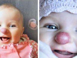 Това е чудо! Ето как изглежда момичето с клоунски нос днес: